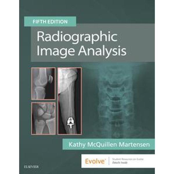 Radiographic Image Analysis E-Book -    Karta-nauczyciela.org