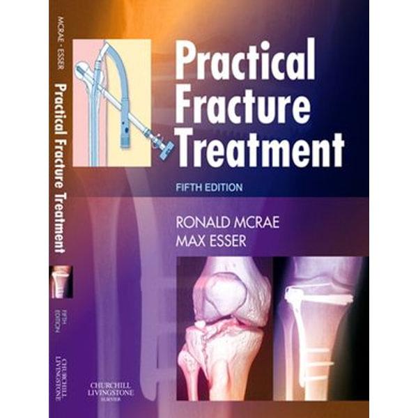 Practical Fracture Treatment E-Book - Ronald McRae, Max Esser   Karta-nauczyciela.org